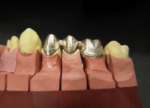 Metallgerüst in verkleinerter Zahnform