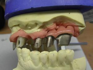 Implantataufbau in Gold mit ergänztem Zahnfleisch