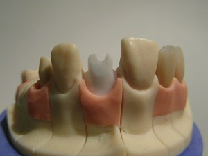 Individueller Implantataufbau Zirkon